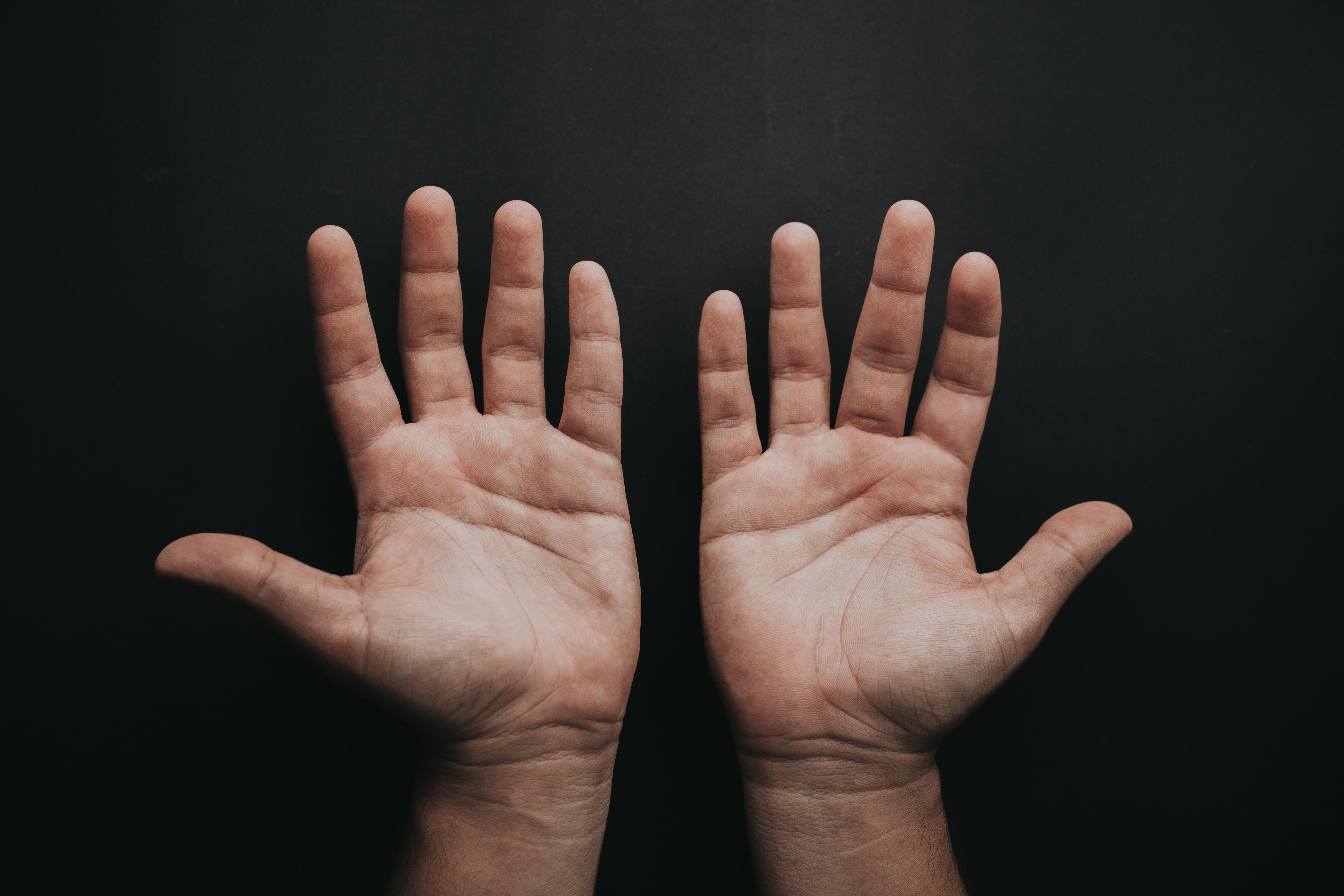 手相占いの左右対称について徹底解説 手相の左右対称の見方のポイントをまとめました